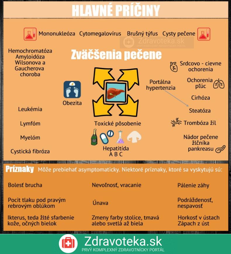 Infografika uvádza najčastejšie príčiny zväčšenia pečene a príznaky, ktoré sa môžu vyskytnúť