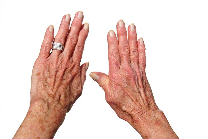 100e0d280 ... reuma, bolesťivé a opuchnuté kĺby prsty na rukách Častou príčinou je  artritída