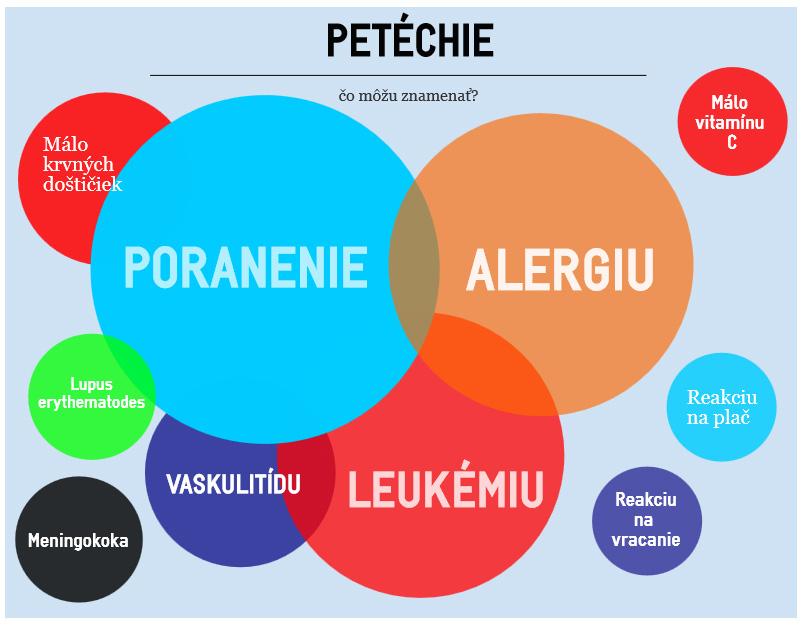 Príčiny petéchií